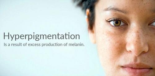 Best cream for acne hyperpigmentation