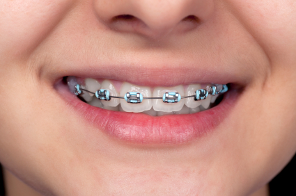 Invisalign Specialist in Prosper TX | Open Late Dentistry
